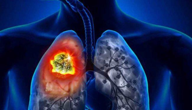 फोक्सोमा धुम्रपानले पुर्याएको क्षति निको पार्ने चमत्कारी क्षमता