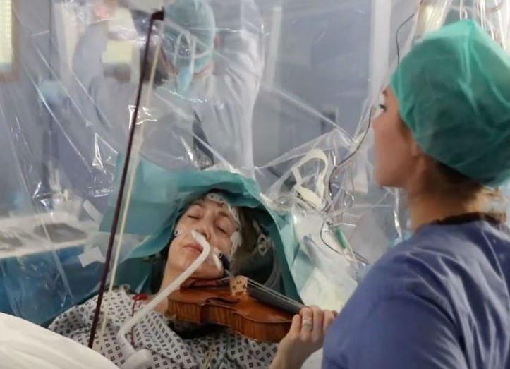 ५३ वर्षीया महिलाको ब्रेन सर्जरी गर्दै गर्दा होश आयो, अनि अपरेशन नसकिएसम्म…