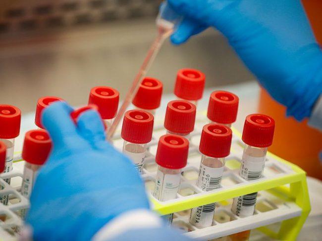 युएइमा थप २ नेपालीमा कोरोनाभाइरसको संक्रमण