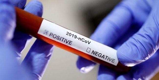 कोरोनाभाइरसको विषयमा नयाँ तथ्यको खोजी, औलो रोगसँग भेटियो यस्तो विशेष सम्बन्ध