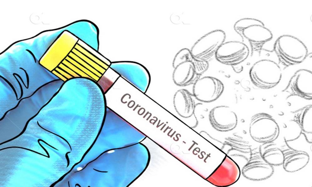 सुर्खेतमा थपिए १५ संक्रमित, मृतक युवकको कोरोना टेष्ट रिर्पोट आयो
