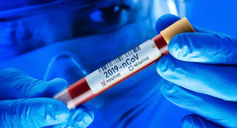 कोरोना महामारीः सार्क राष्ट्रमध्ये नेपालको अवस्था सन्तोषजनक